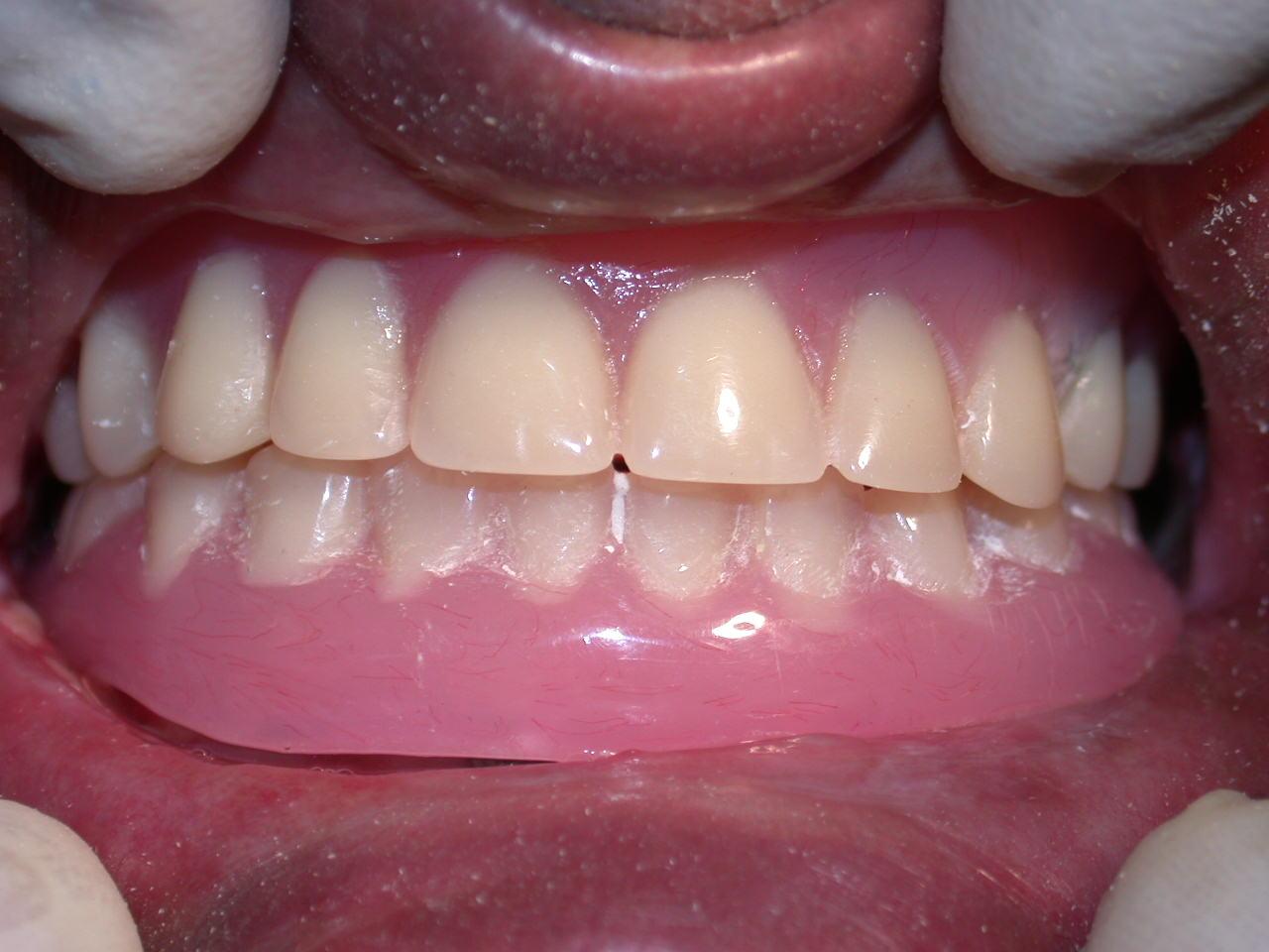 SolaIndia Laser Dentistry
